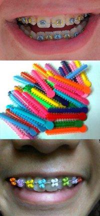 Брекеты на зубы - новый модный тренд