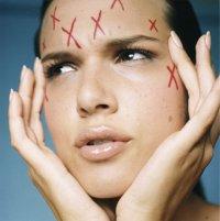 Лосьон для очищения проблемной кожи лица