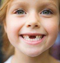 Как облегчить расставание ребенка с молочными зубами