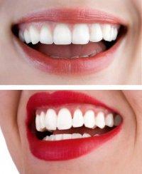 Черный чай - белые зубы