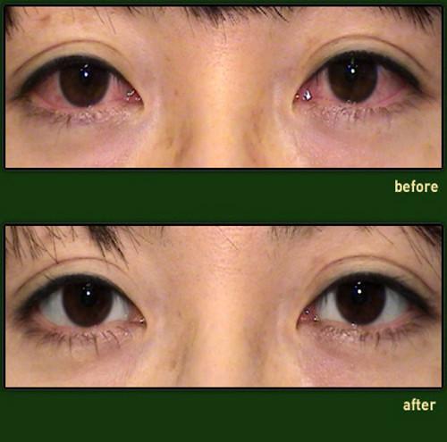 Операция по осветлению глаз