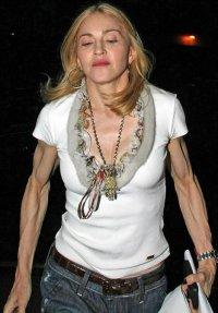 Руки Мадонны выглядят ужасно