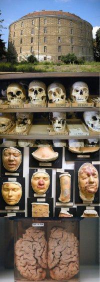 Музей патологоанатомии в Вене