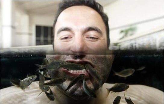 Необычные методы лечения: рыбки против псориаза