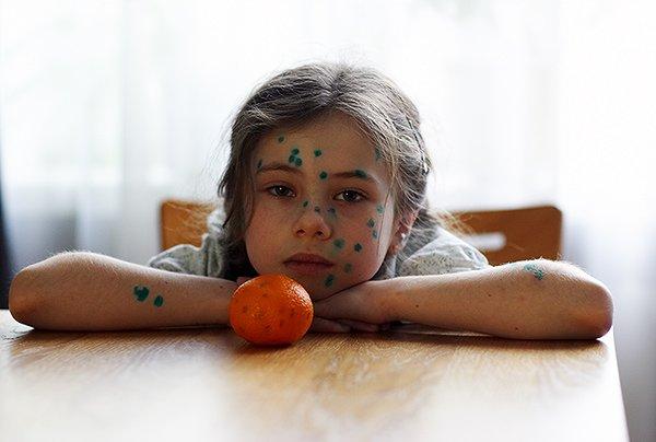Причины сыпи у детей