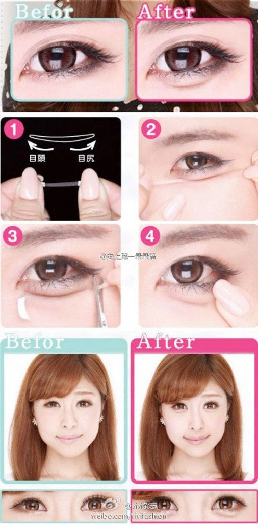 Красота по-корейски: мешки под глазами