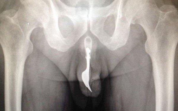 Вилка в члене: результат сексуальных игр 70-летнего мужчины